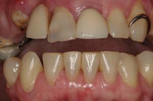 Dentures_Before1