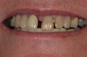 Dentures_Before2